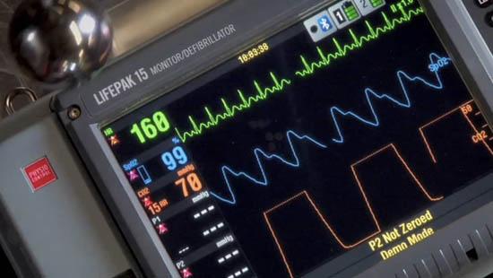 LIFEPAK 15 Monitor Defibrillator - Screen