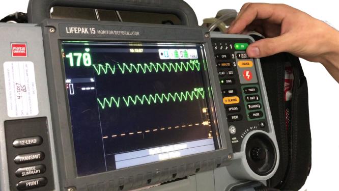 LIFEPAK 15 Monitor Defibrillator (17)